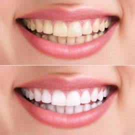 دکتر سعید ملک محمودی بهترین دندانپزشک زیبایی و ایمپلنت  گرگان